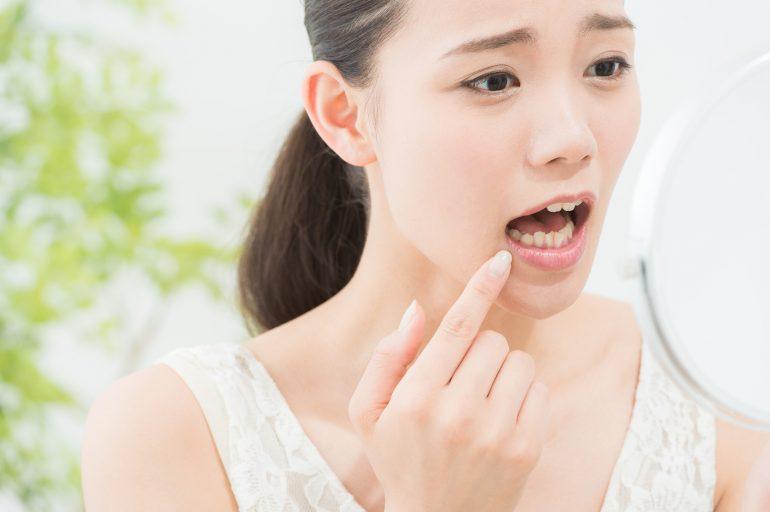 口腔粘膜疾患