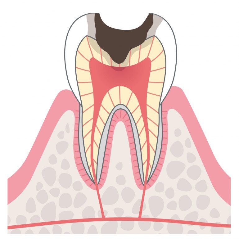 C3【神経に達した虫歯】