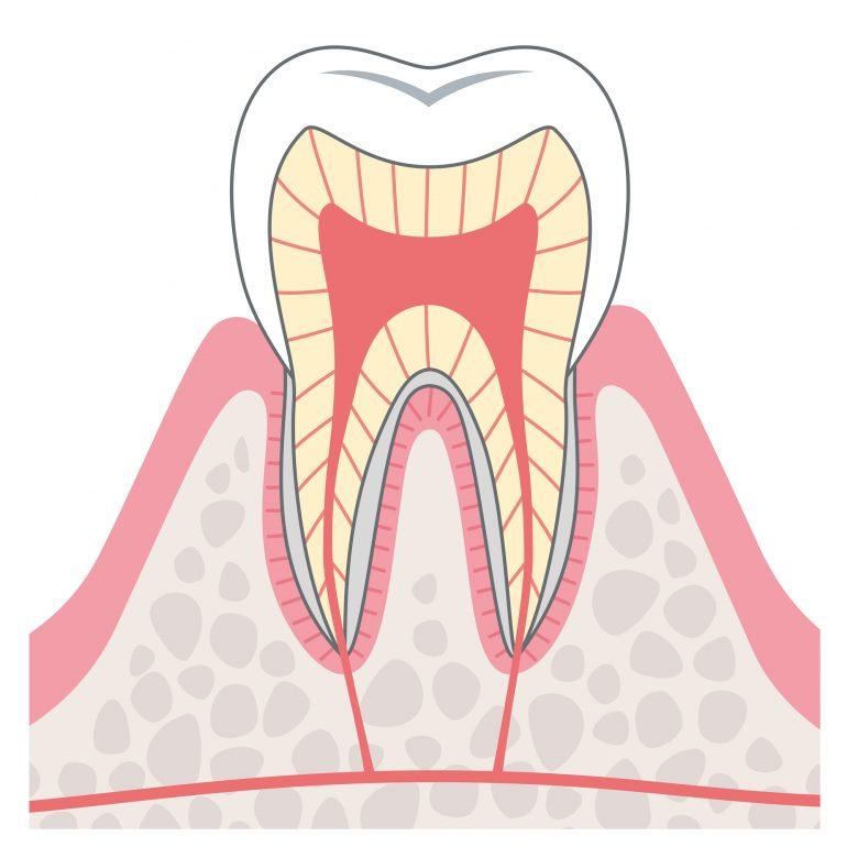 C0【虫歯になる前兆】