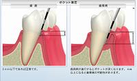 歯周病☆2④